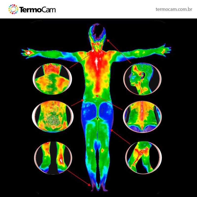 Termografia Fisiopatológica - TermoCam