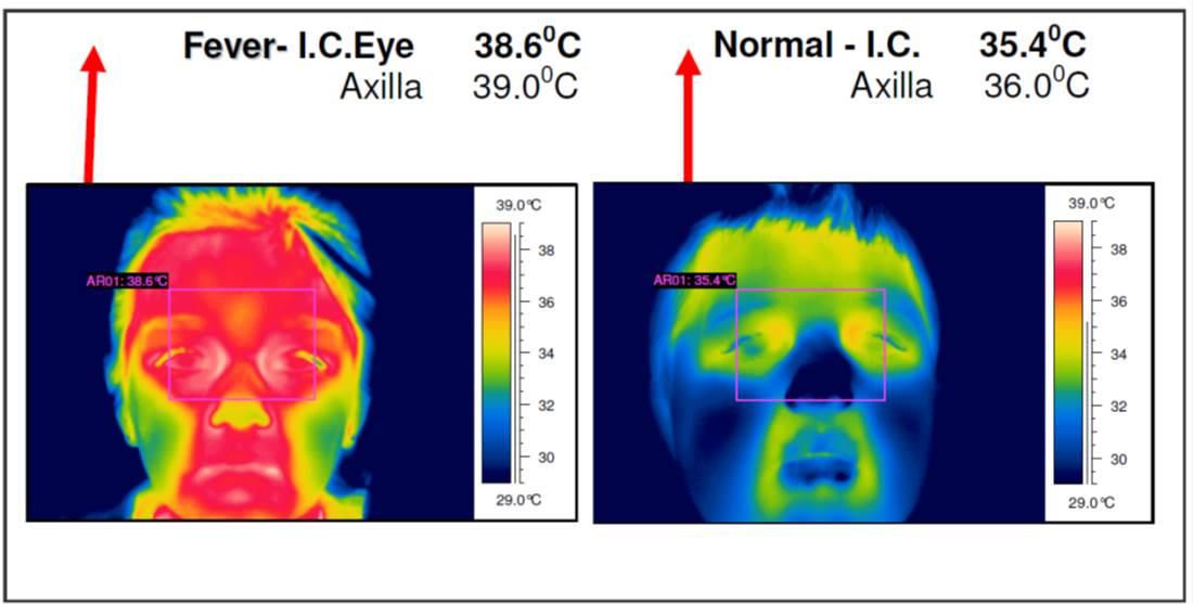 Rastreamento termográfico de vírus - detecção de febre - ebola - Termografia - TermoCam