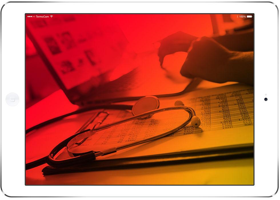 Aplicações Médicas e Científicas - termografia - TermoCam